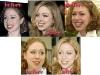 chelsea_clinton_plastic_surgery_01
