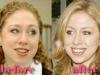 chelsea_clinton_plastic_surgery_03