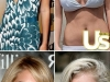 heidi-montag-before-and-after-photos