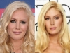 heidi-montag-before-and-after-pic-3-and-4