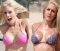 heidi-montag-plastic-surgery-before-and-after-pictures