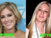 heidi-montag-plastic-surgery-before-and-after