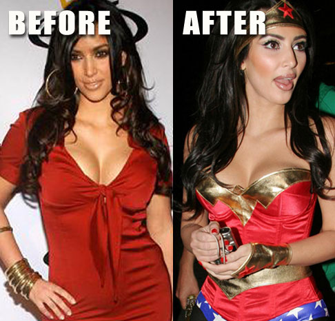Kardashian  Plastic Surgery on Out Your Favourite Star Kim Kardashian   S Plastic Surgery Before