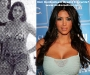 kim-kardashian-breast-implants