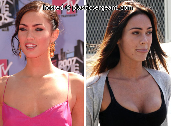(Picture 1629 « Megan Fox Plastic Surgery Before and After Photos And )
