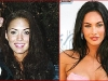 megan-fox-before-after-surgery-1-1