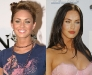megan-fox-before-after-surgery-1-10