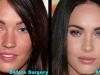 megan-fox-before-after-surgery-1-2