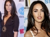 megan-fox-before-after-surgery-1-4