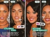 megan-fox-before-after-surgery-1-5