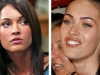 megan-fox-before-after-surgery-1-6