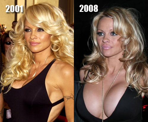 Pamela Anderson Plastic Surgery Before and After Photos