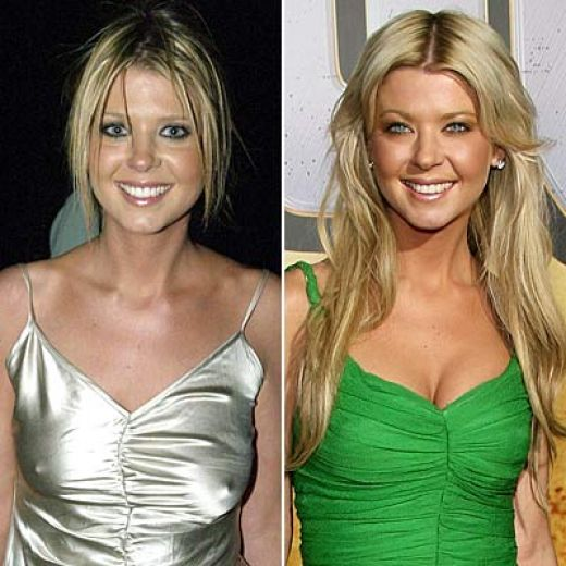 Tara Reid Plastic Surgery Before and After Photos